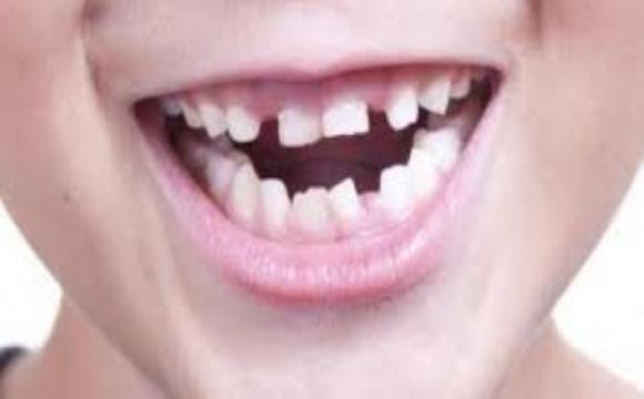 У тих, хто перехворів на COVID-19, можуть випадати зуби