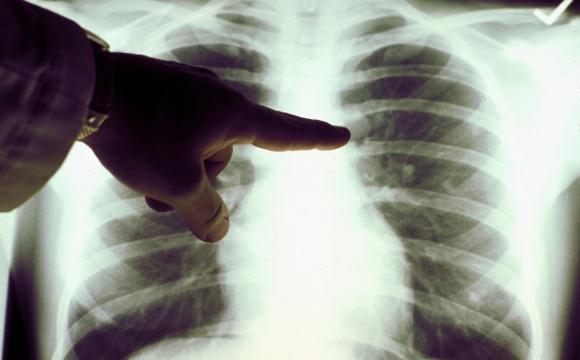 Як відрізнити пневмонію від застуди?
