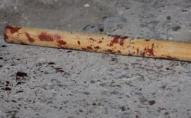 Двоє лучан побили 17-пічного підлітка палицями