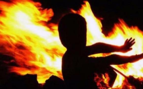4-річний хлопчик підпалив себе, доки батьки були на вулиці