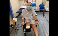 Чоловік залишився без ноги після того, як захворів на COVID-19
