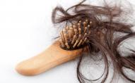 Після безсимптомного коронавірусу у жінки клаптями почало випадати волосся . ФОТО