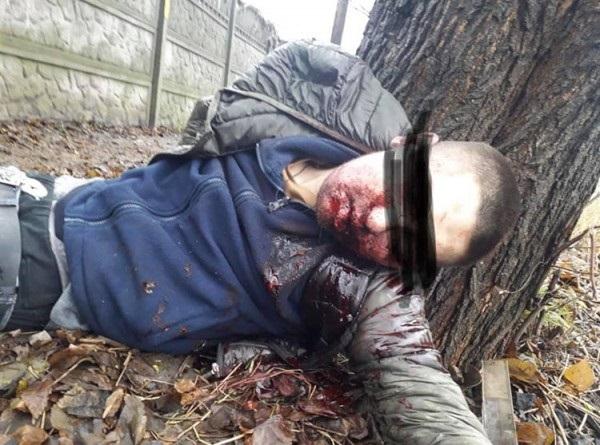 Жорстоко вбили 26-річного хлопця, підірвавши петарду в роті. ФОТО 18+