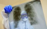 На Волині виявили 344 нових випадків   COVID-19, в Україні - більше 15 0000