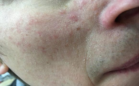 Висипання на шкірі можуть спричиняти погані звички