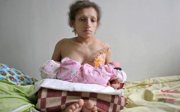 Боролася з онкологією: на Львівщині померла найнижча мама України
