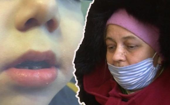 Справу луцької виховательки, яку звинувачували у заклеюванні дітям рота скотчем, закрили