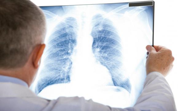 Від коронавірусу вилікували медсестру з 95% ураження легенів