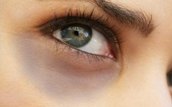Про які хвороби свідчать темні кола під очима