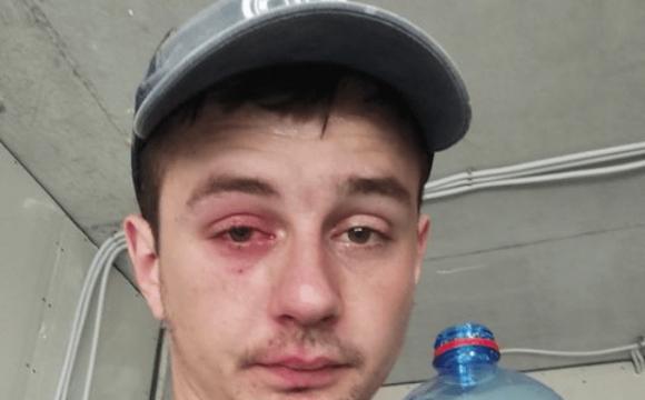 Відкриваючи мінералку, пошкодив рогівку, дістав контузію ока і крововилив. ФОТО