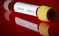 Відтепер для подорожі в Туреччину потрібен негативний тест на коронавірус