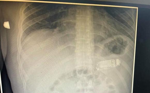 Пробув у шлунку чотири дні: 33-річний чоловік повністю проковтнув телефон. ФОТО