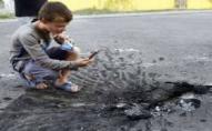 Хлопчик серйозно травмувався через знайдений на смітнику вибуховий пристрій