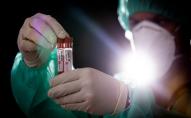 Як потрібно хоронити померлих від коронавірусу?