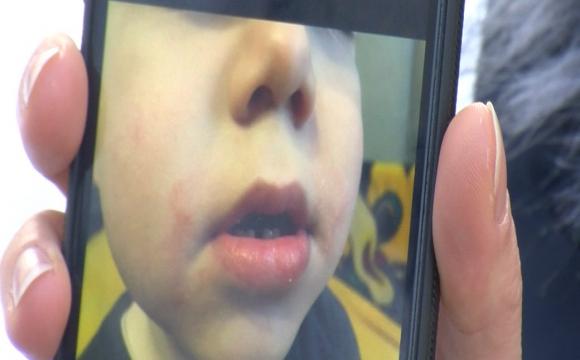 Мама дитини, якій заклеювали рот скотчем у дитсадку, відмовилась давати свідчення в поліції