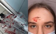 У торговому центрі агресивна жінка до крові побила дівчину. ФОТО