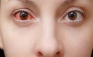 Запалення очей може бути симптомом COVID-19: подробиці